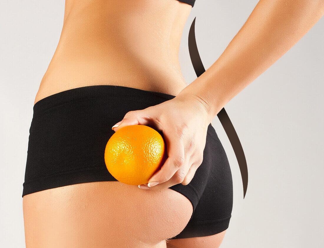 traitements pour éliminer la cellulite